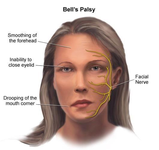 bells-palsy-mtajj7ztg2rn5449hajy47i83jz2usxln6jiisqo00