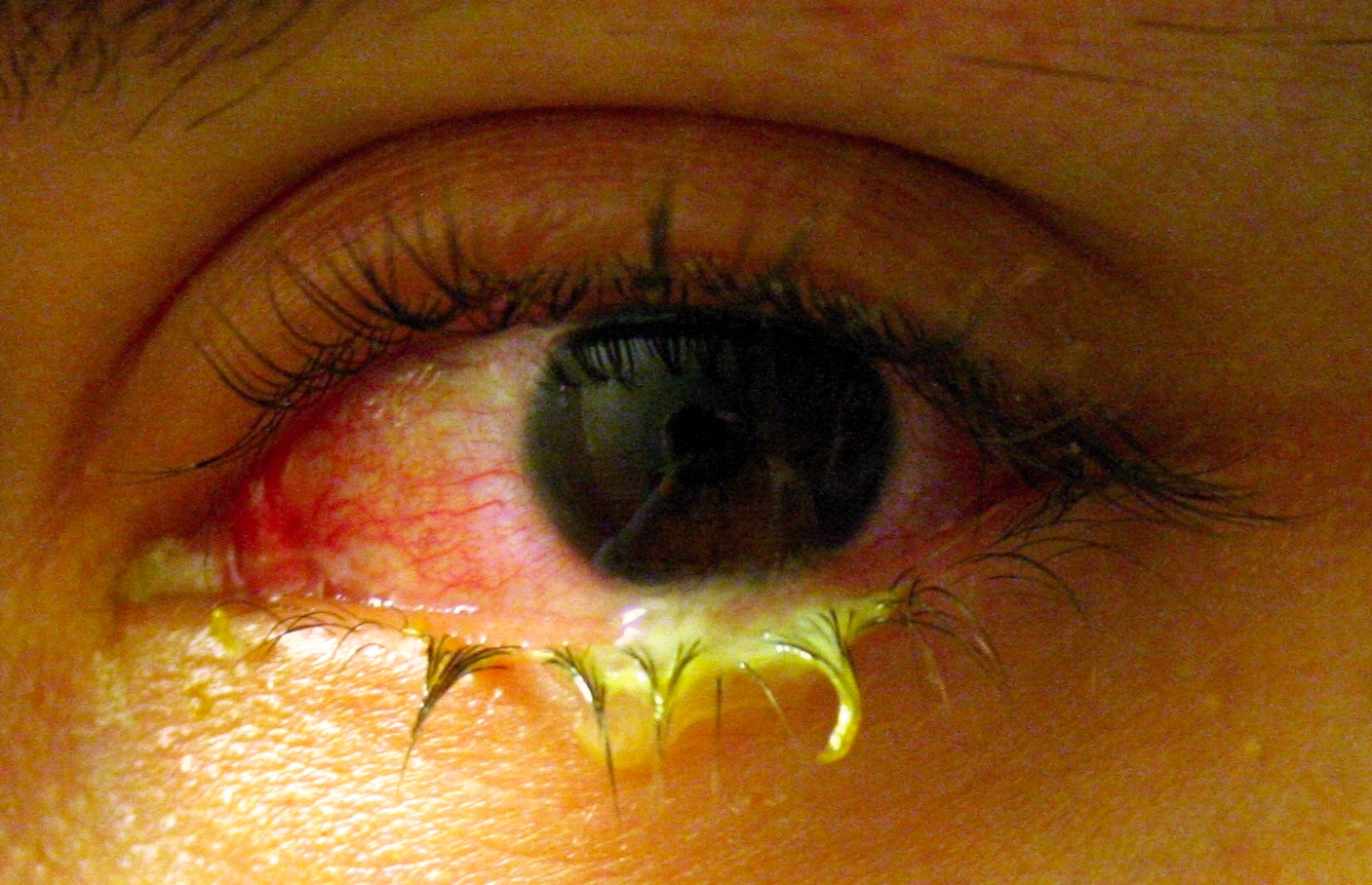Swollen_eye_with_conjunctivitis
